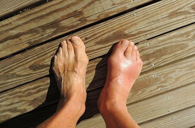 Bệnh gout là gì? Típ 5 Bài thuốc ngâm chân chữa Bệnh Gout hiệu quả tại nhà
