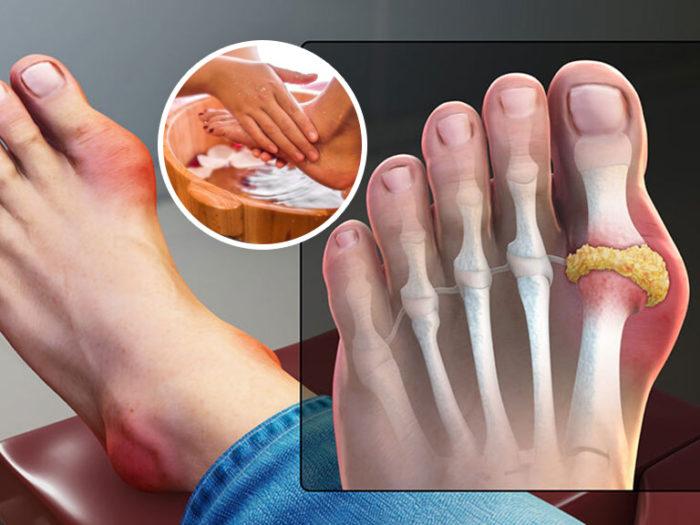 Típ 5 Bài thuốc ngâm chân chữa Bệnh Gout hiệu quả tại nhà
